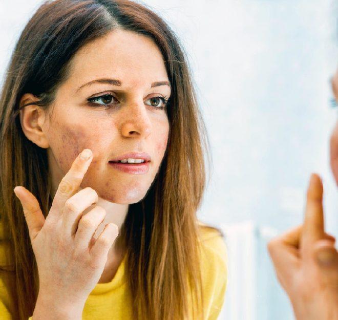 Sindrome dell'ovaio policistico: acne